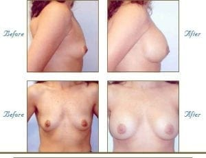 breastAugmentation1