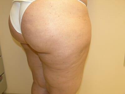 Cellfina Patient After 1