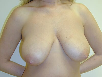 Breast Lift Patient Before 2
