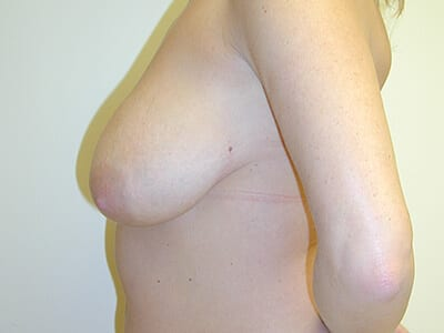 Breast Lift Patient Before 2 - 2