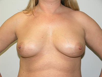 Breast Augmentation Patient Before 5