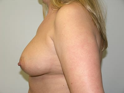 Breast Augmentation Patient Before 5 - 2