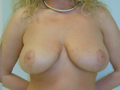 Breast Lift Patient After 2