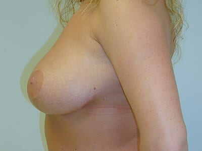 Breast Lift Patient After 2 - 2