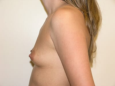 Breast Augmentation Patient Before 4 - 2