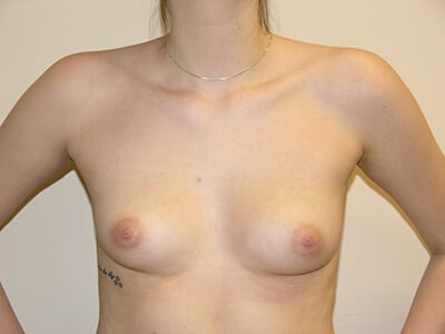 Breast Augmentation Patient Before 3