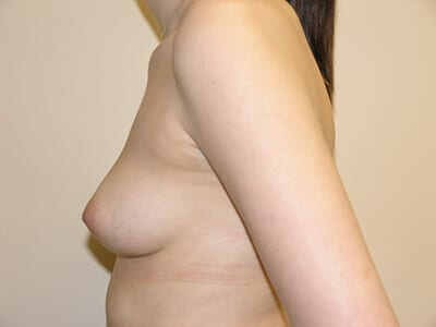 Breast Augmentation Patient Before 3 - 2