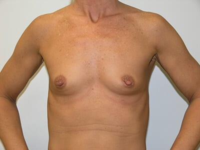 Breast Augmentation Patient Before 1