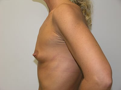 Breast Augmentation Patient Before 1 - 2