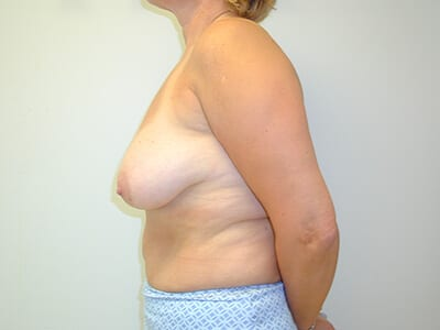 Breast Lift Patient Before 1 - 2