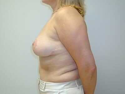 Breast Lift Patient After 1 - 2