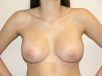Breast Augmentation Patient After 3