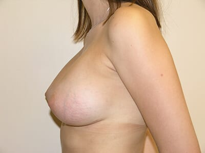 Breast Augmentation Patient After 3 - 2