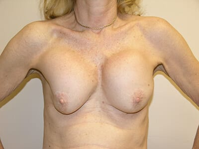 Breast Revision Patient Before 1