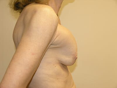 Breast Revision Patient Before 1 - 2