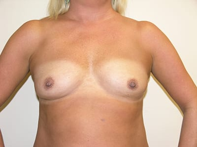 Breast Augmentation Patient Before 2