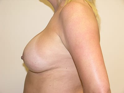 Breast Augmentation Patient After 2 - 2