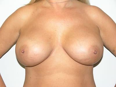 Breast Augmentation Patient After 5