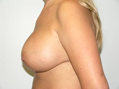 Breast Augmentation Patient After 5 - 2