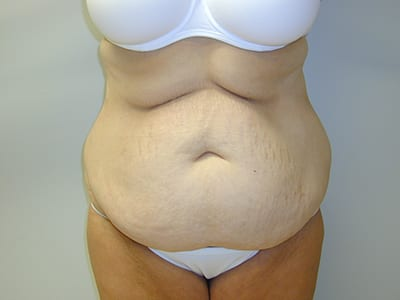 Tummy Tuck Before Patient 1