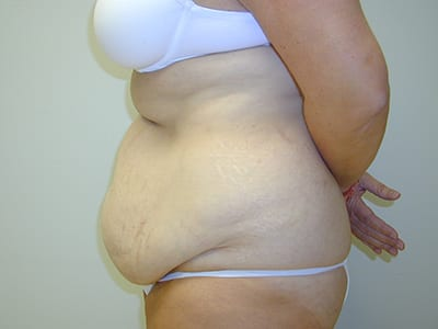 Tummy Tuck Before Patient 1 - 2