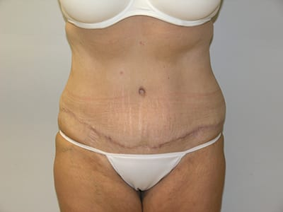 Tummy Tuck After Patient 1