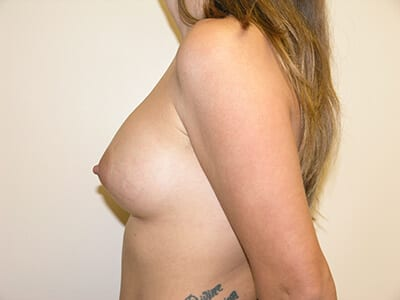 Breast Augmentation Patient After 4 - 2