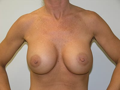 Breast Augmentation Patient After 1