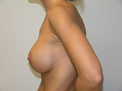 Breast Augmentation Patient After 1 - 2