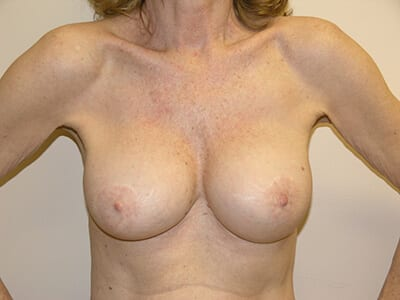 Breast Revision Patient After 1