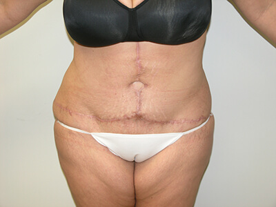 Tummy Tuck After Patient 2