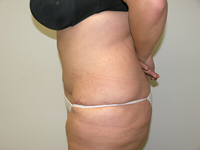 Tummy Tuck After Patient 2 - 2