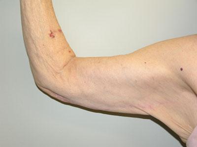 Arm Lift (Brachioplasty) After Patient 1