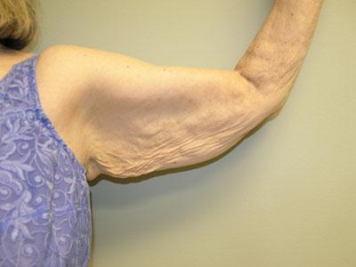 Arm Lift (Brachioplasty) Before Patient 1